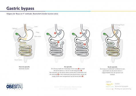 Figuur 1: De Gastric Bypass operatie, volgens de Roux-en-Y methode, in het kort