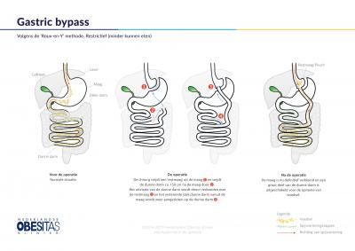 De Gastric Bypass operatie