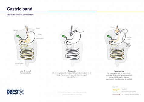 Figuur 1: De Gastric Band (maagband) ingreep in het kort