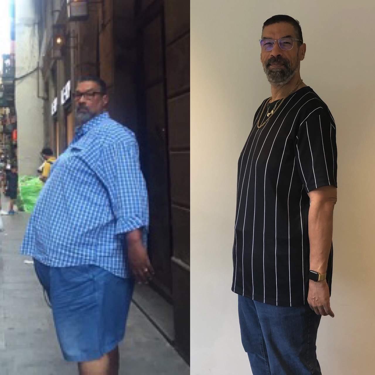 Frank Vanenburg voor en na de behandeling